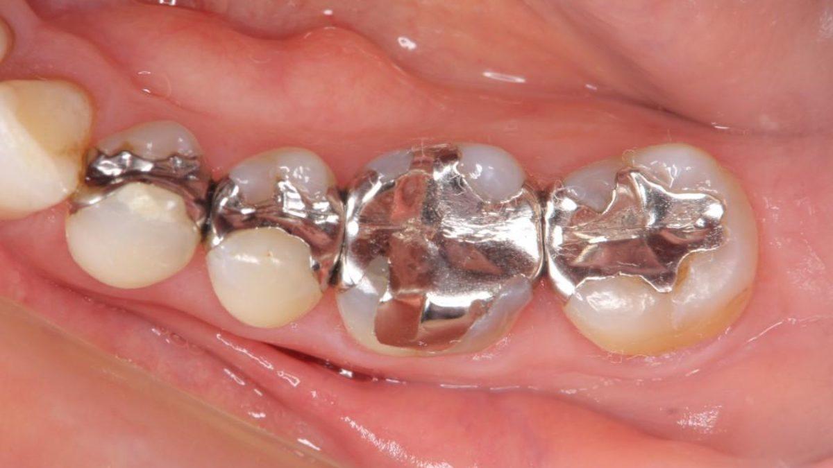 歯 し みる 銀 金運アップには歯の治療!? ラッキーショップ