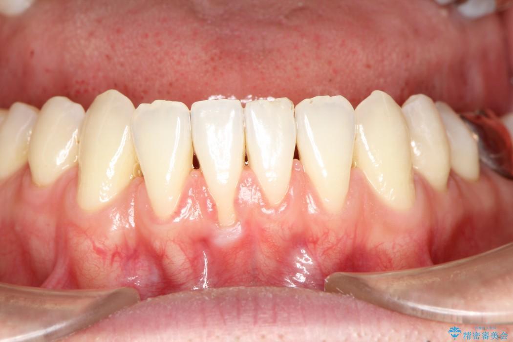 歯ぐきの再生治療 治療前画像