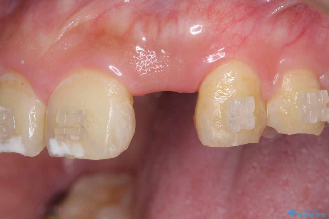 左上前歯のインプラント治療(インプラント埋入まで) ビフォー