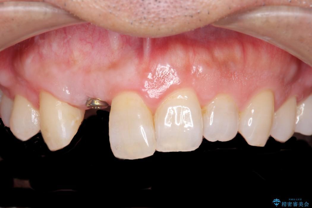 前歯のインプラント治療(セラミック治療編) ビフォー