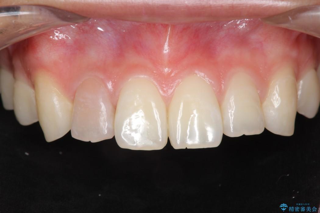 神経が死んでしまった前歯のオールセラミック治療 ビフォー