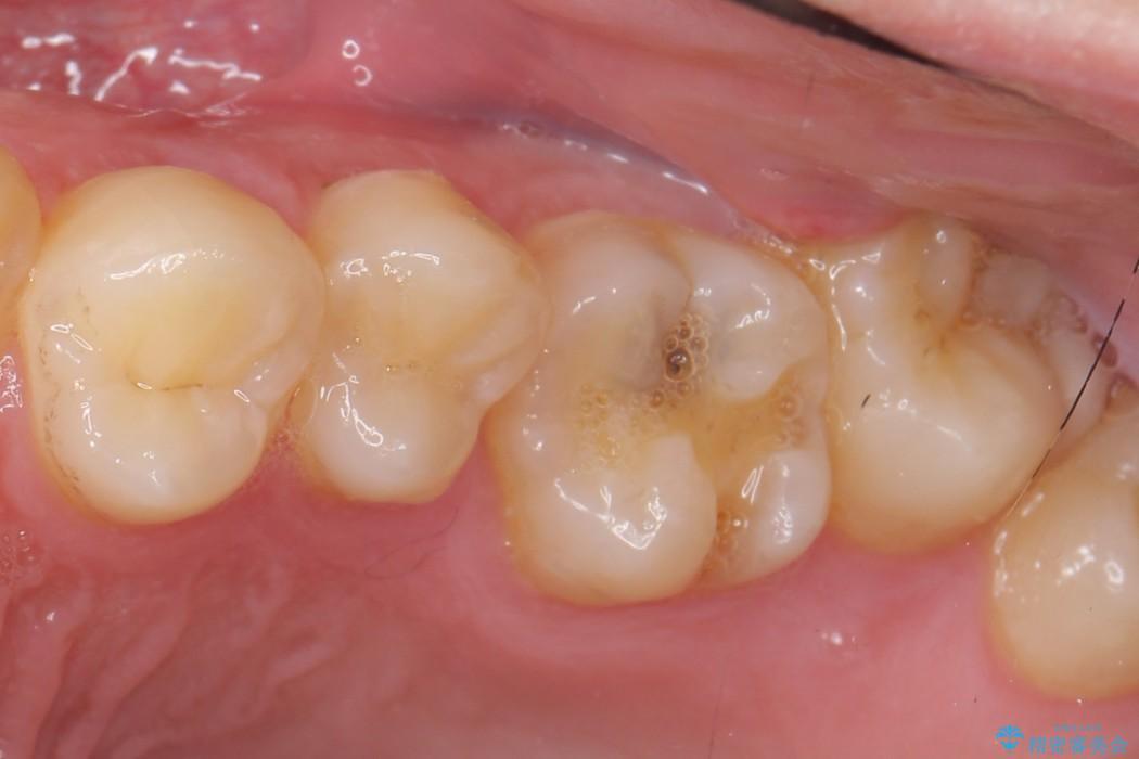 上の奥歯のゴールドインレー ビフォー