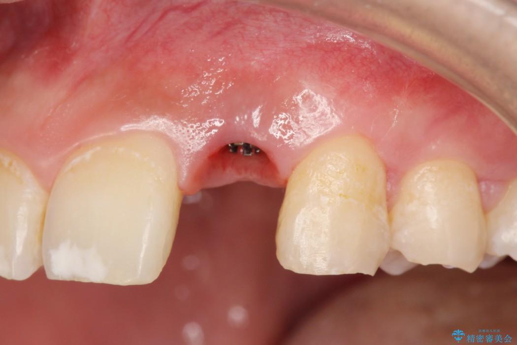 左上前歯のインプラント治療(セラミック治療編) ビフォー