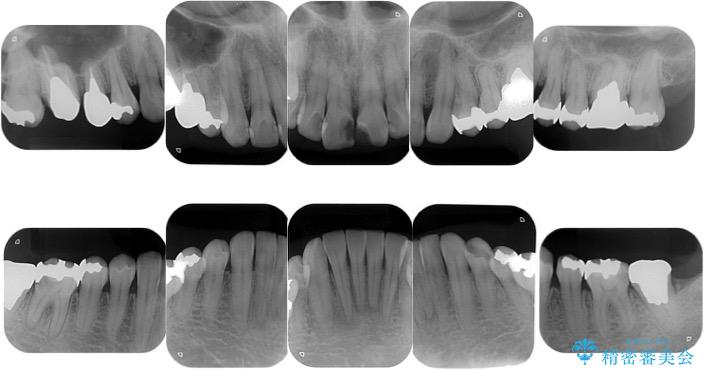 <メタルフリー>銀歯のセラミック治療 治療前画像