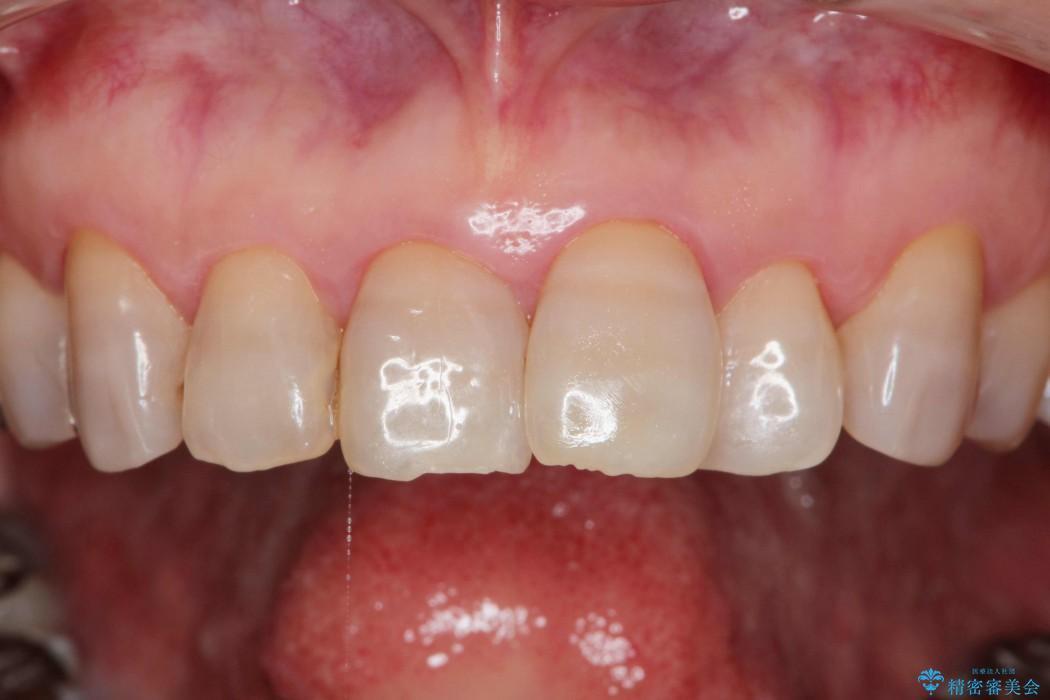 テトラサイクリンによる変色歯のセラミック治療 ビフォー