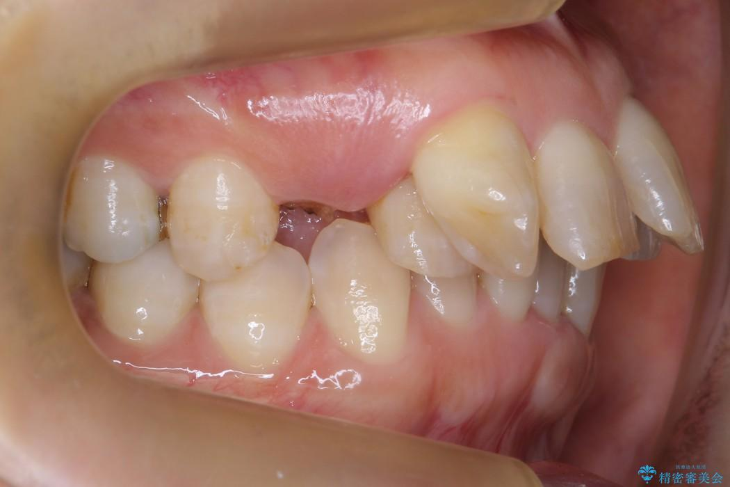 気になる前歯を矯正とセラミックの低予算治療 治療前画像