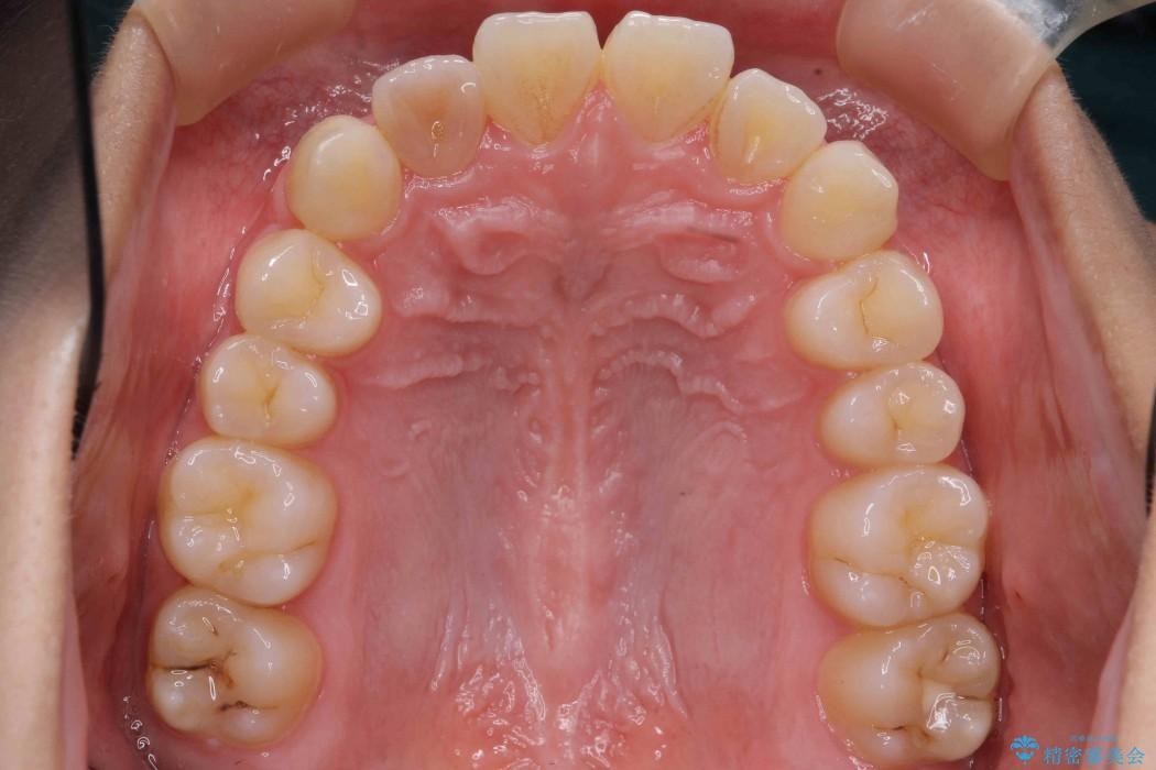 インビザラインで再矯正治療と右上前歯のセラミック治療 治療前画像