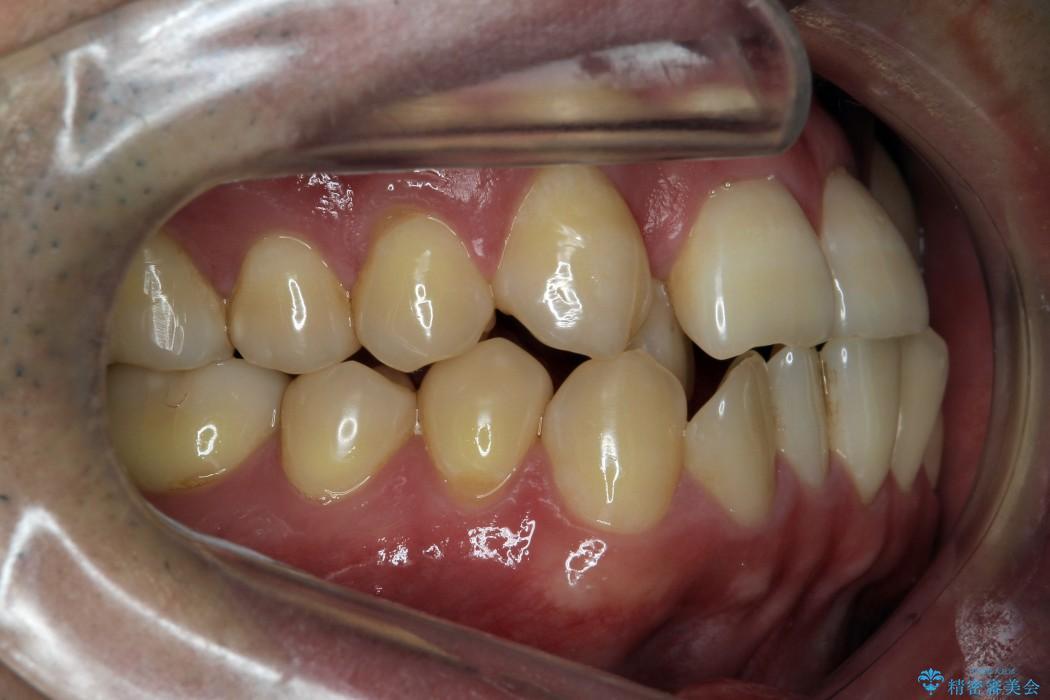 前歯のガタガタと奥歯の噛み合わせの矯正 治療前画像