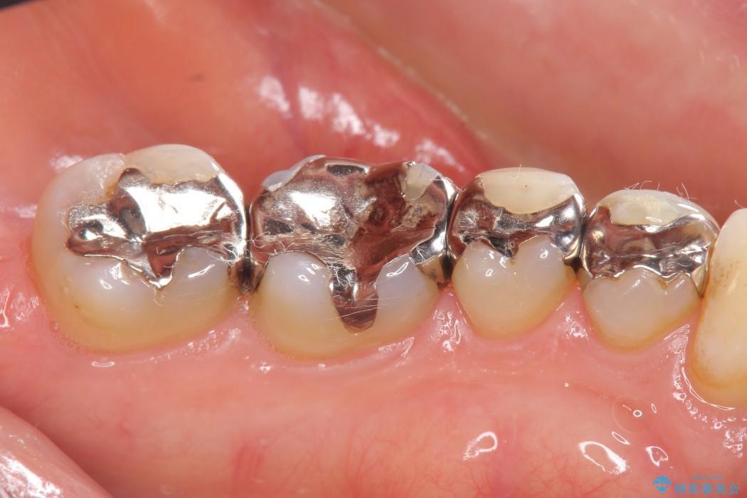 銀歯を白くするセラミックインレー 治療前画像