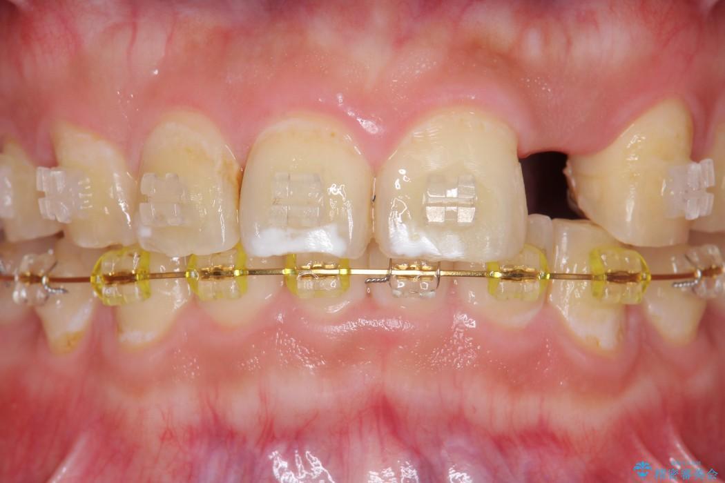 左上前歯のインプラント治療(インプラント埋入まで) 治療前画像