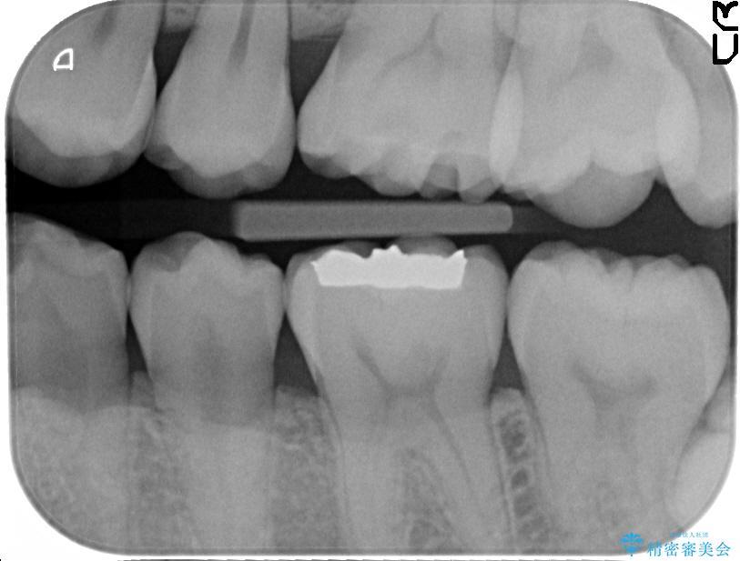 上の奥歯のゴールドインレー 治療前画像