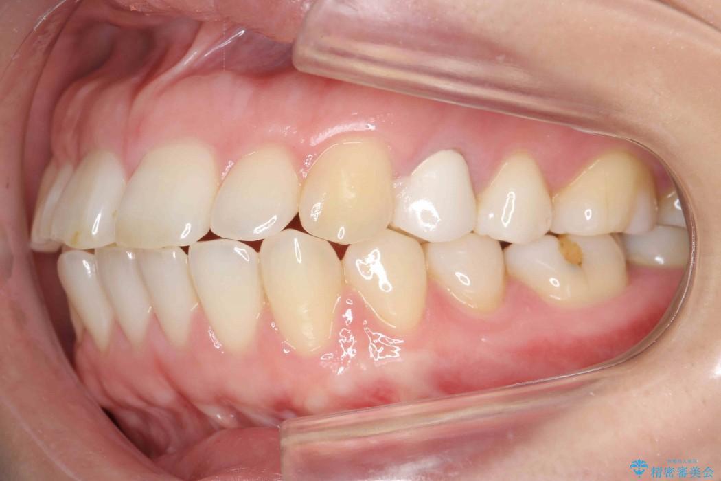 30代女性 出っ歯の再矯正治療 治療前画像