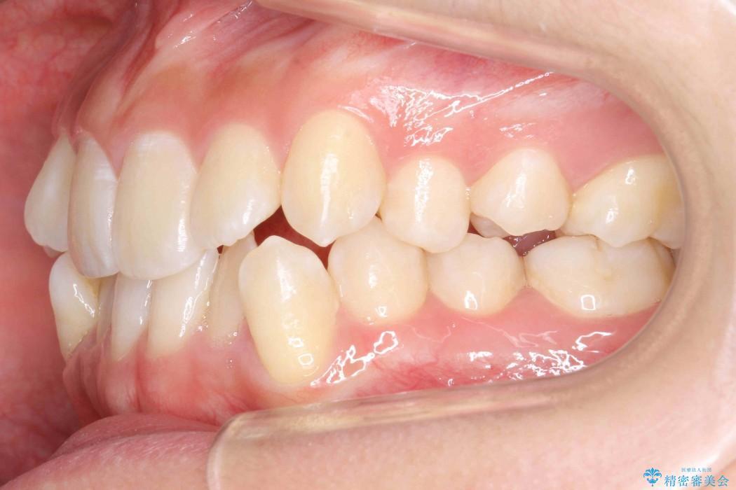 前歯の叢生のインビザライン矯正 治療前画像