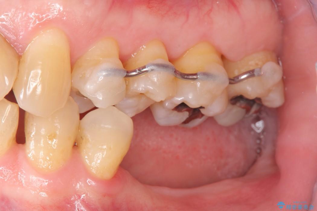 奥歯で噛みたいインプラント治療 治療前画像