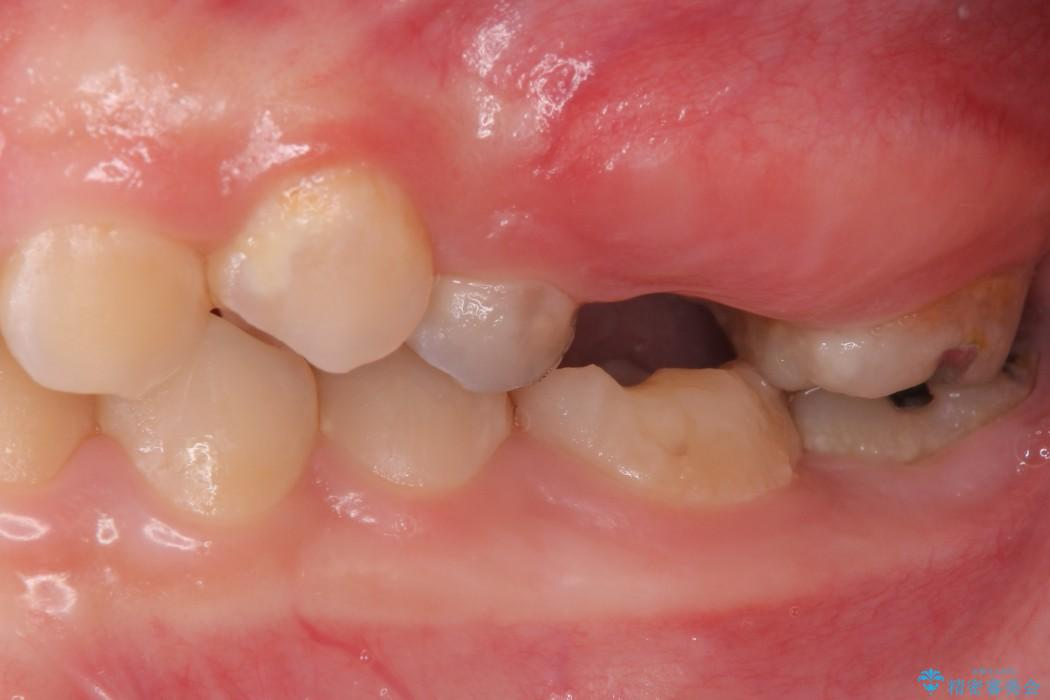 奥歯の親知らず移植 治療前画像