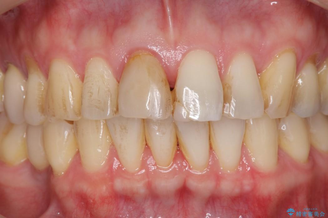 神経が無い歯のセラミック治療 治療前画像