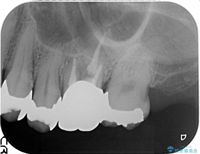 大きな穴があいた奥歯のブリッジ治療 治療前画像