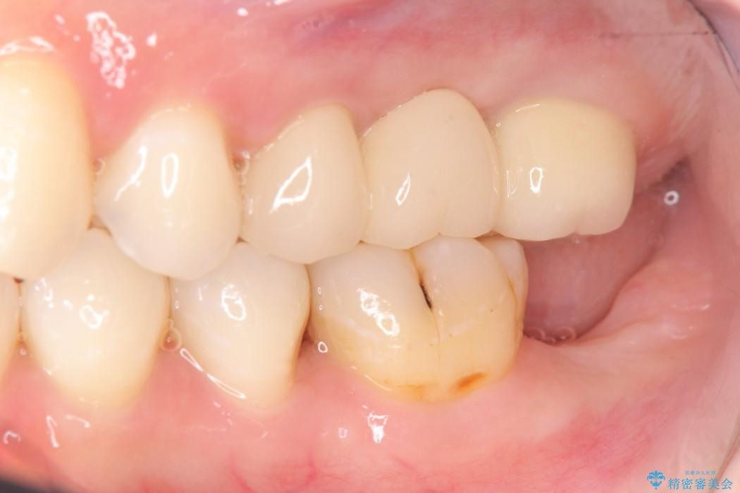 奥歯のストローマン・インプラント 治療前画像