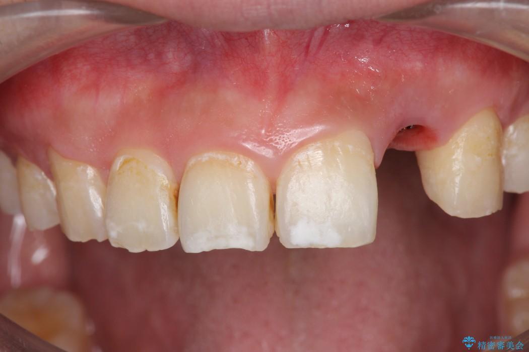 左上前歯のインプラント治療(セラミック治療編) 治療前画像