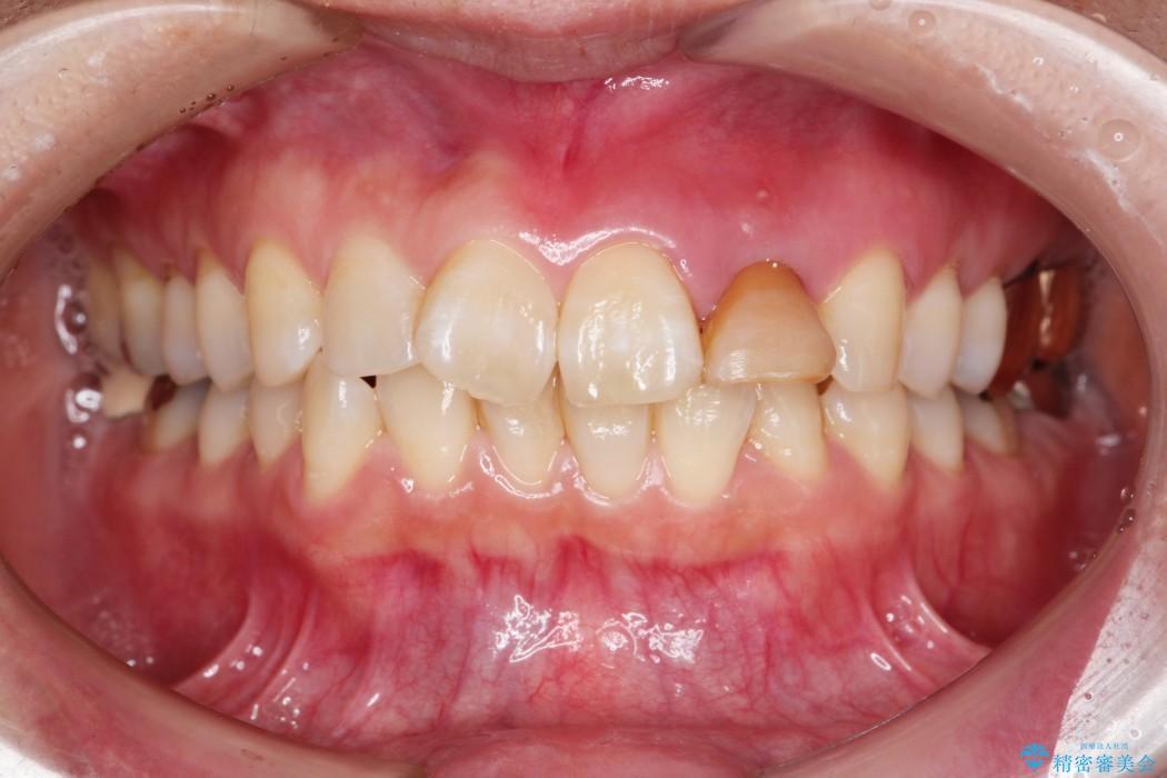 グラグラする前歯のブリッジ治療 治療前画像