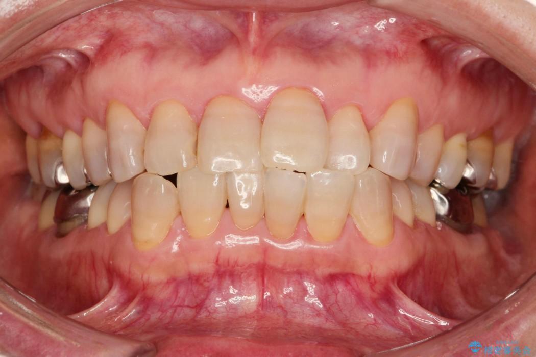テトラサイクリンによる変色歯のセラミック治療 治療前画像