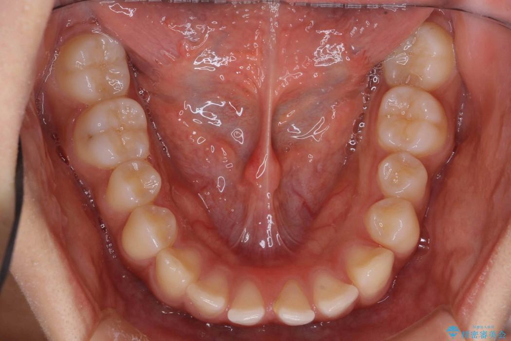20代女性 すきっ歯の矯正歯科治療 治療前画像