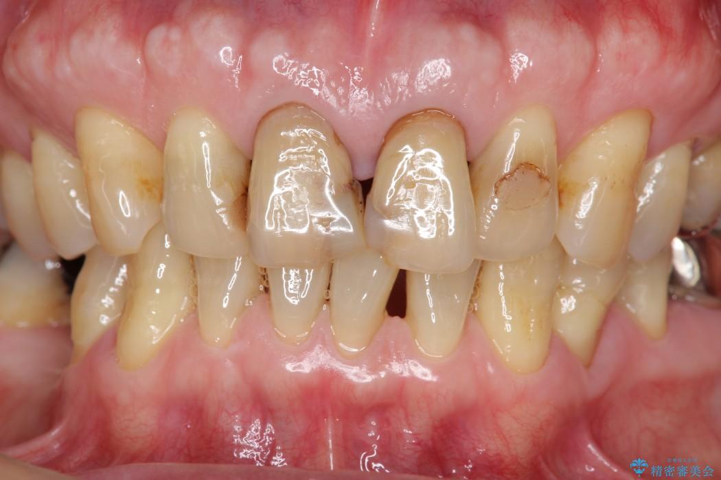 感染根管治療を伴った前歯のセラミック治療 治療前画像
