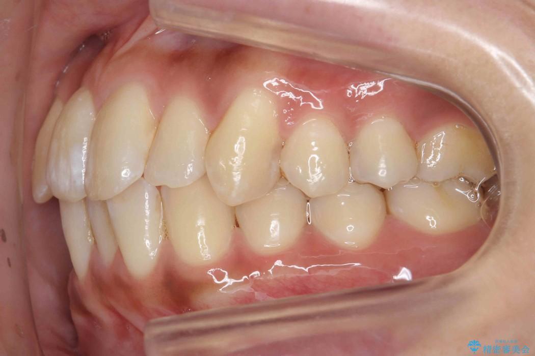 天然歯を活かす、スレ違い咬合矯正 治療前画像