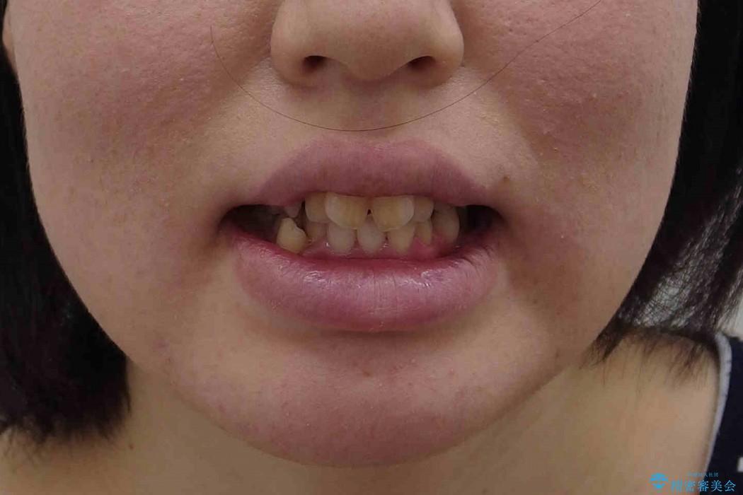 前歯のねじれと出っ歯の矯正 治療前画像
