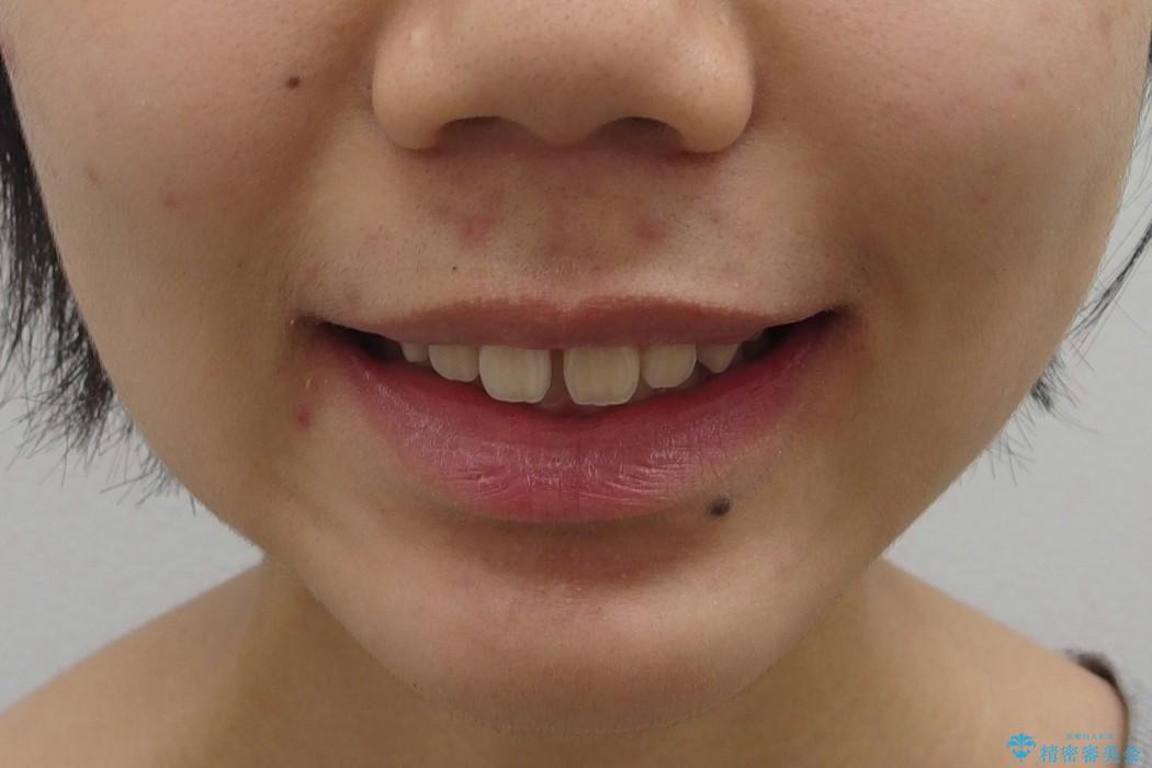 前歯のすき間と過蓋咬合のワイヤー矯正 治療前画像