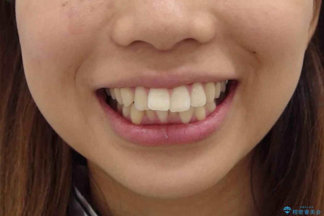 他院で治療した出っ歯の再矯正 治療前画像