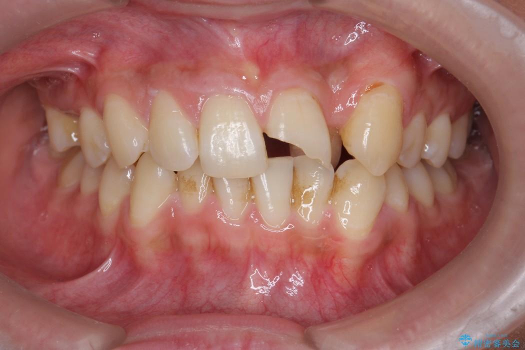 欠けた前歯のセラミック治療 治療前画像
