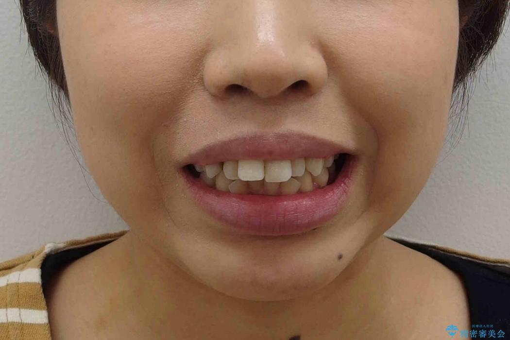 出っ歯(オーバージェット10mm)のワイヤー矯正 治療前画像