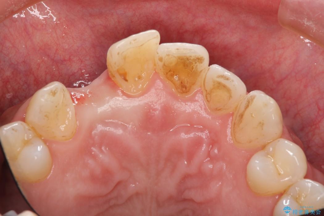 前歯のインプラント治療(インプラント埋入まで) 治療前画像