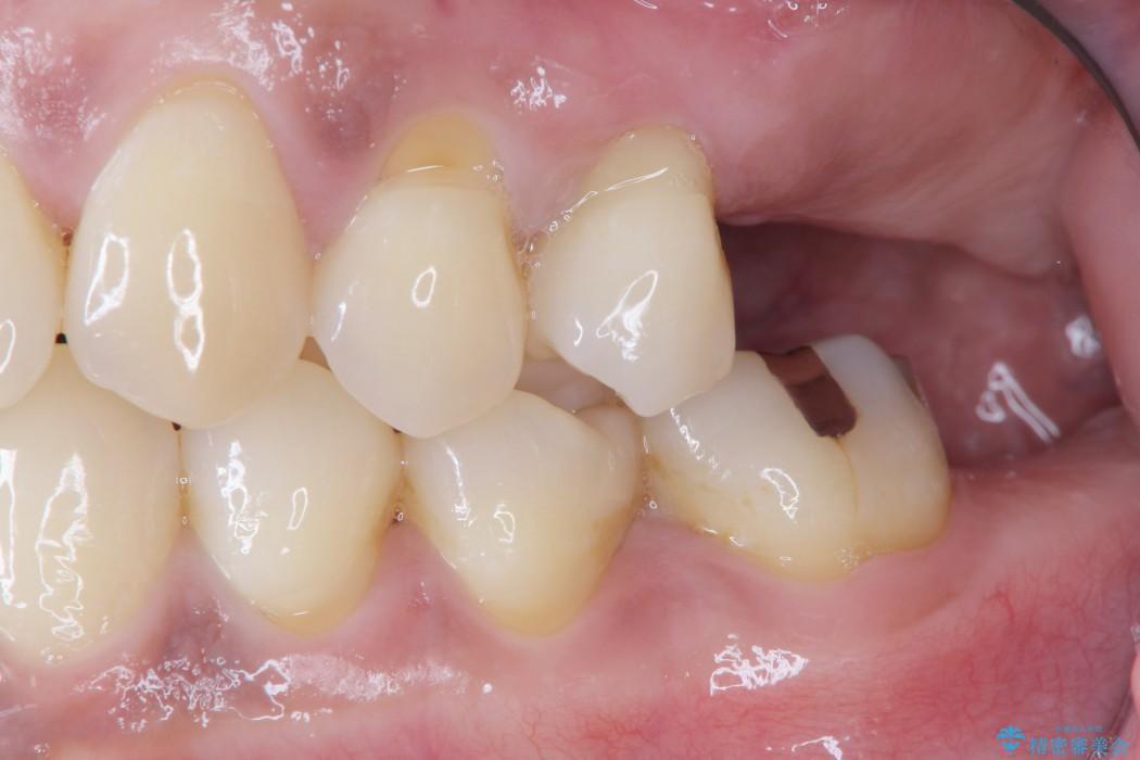 インプラントを用いた重度歯周病治療 治療前画像