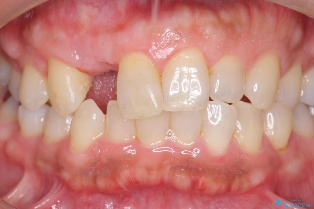 前歯のインプラント治療(セラミック治療編) 治療前画像