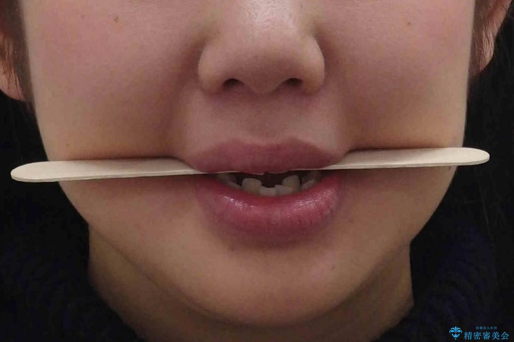 反対咬合(奥歯)のワイヤー矯正治療 治療前画像