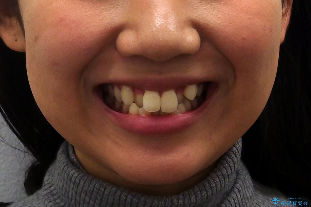 根の短い歯を抜歯 がたがたの歯並び矯正 治療前画像