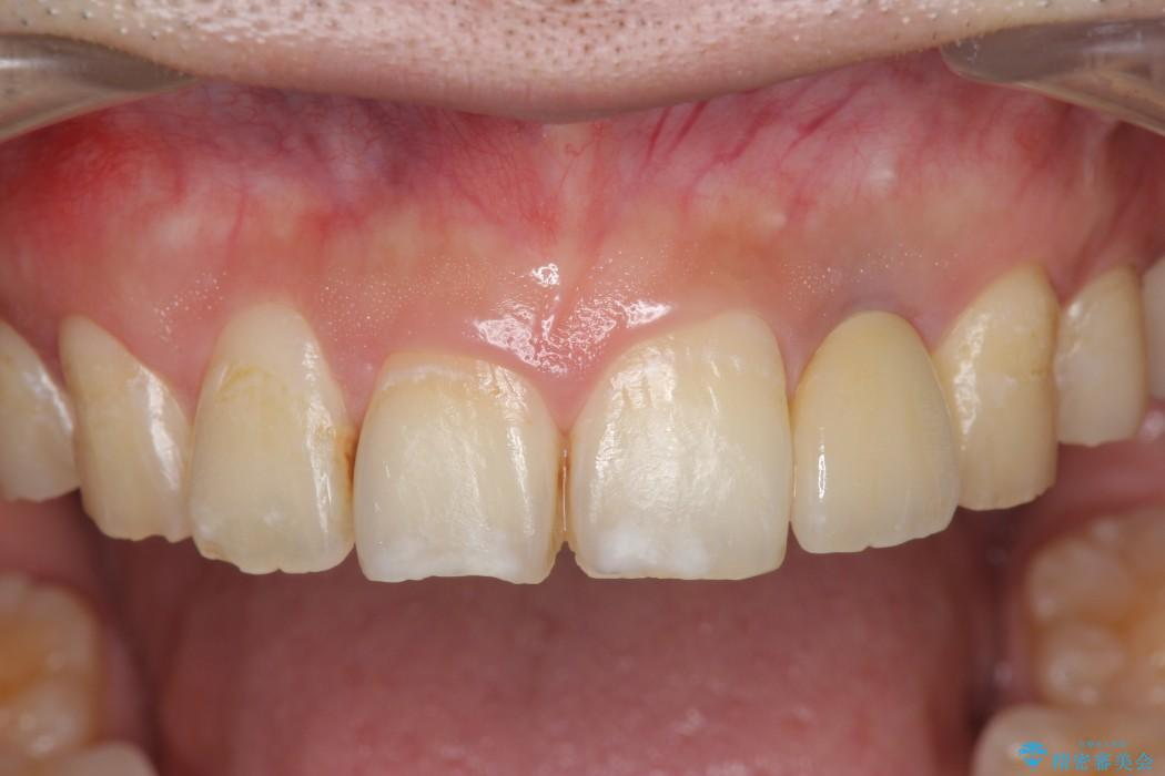 上の前歯のインプラント治療 アフター