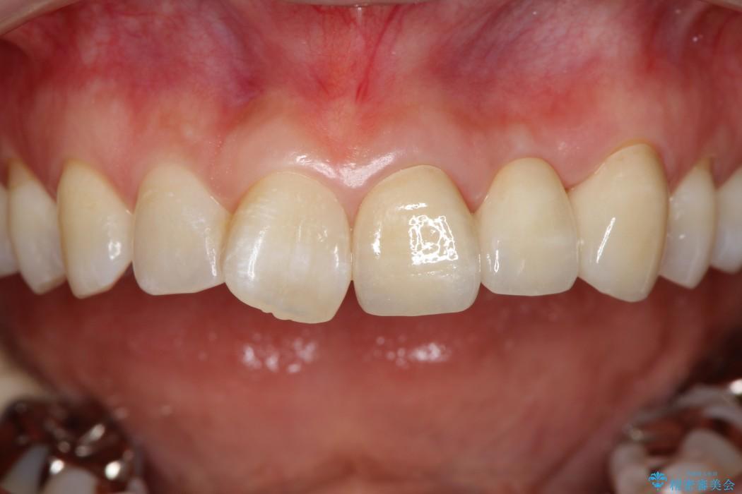 グラグラする前歯のブリッジ治療 アフター