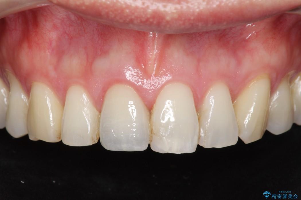 神経が無い歯のセラミック治療 アフター