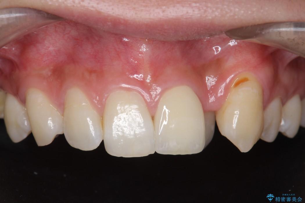 欠けた前歯のセラミック治療 アフター