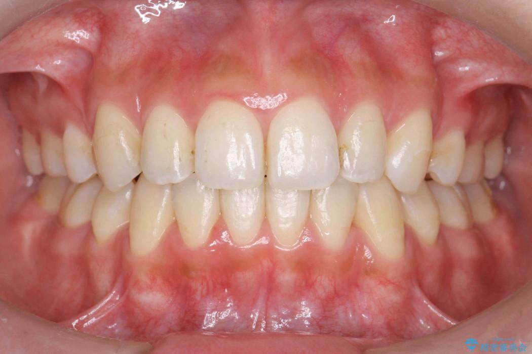 出っ歯(オーバージェット10mm)のワイヤー矯正 アフター