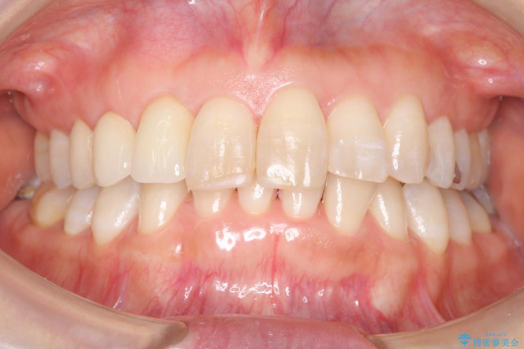 気になる前歯を矯正とセラミックの低予算治療 アフター