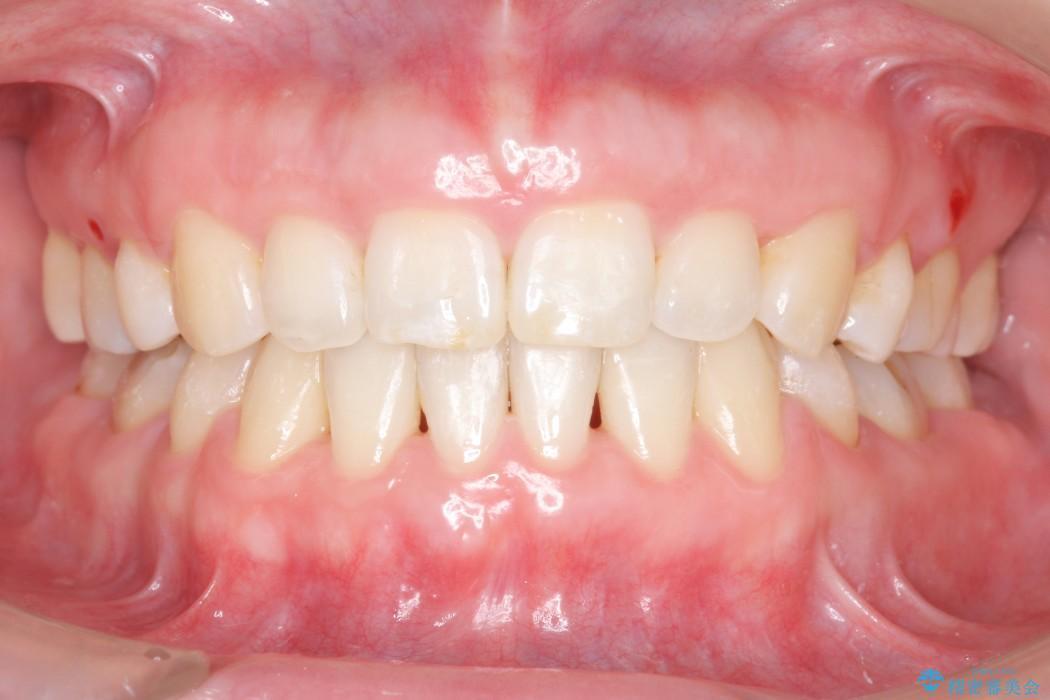 30代女性 出っ歯の再矯正治療 アフター