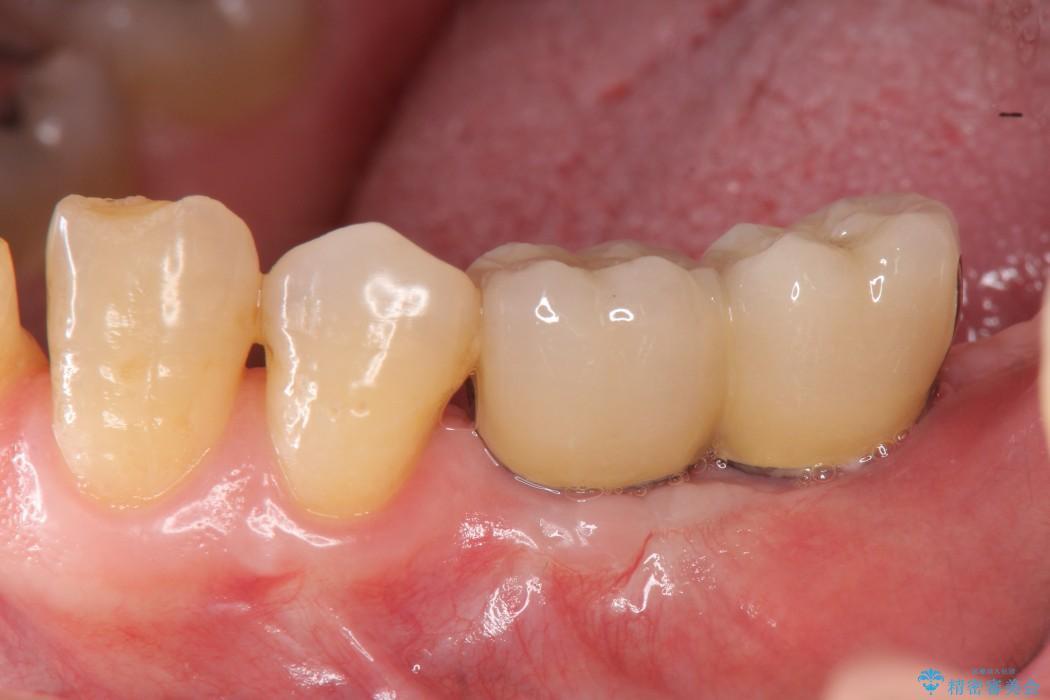奥歯で噛みたいインプラント治療 アフター