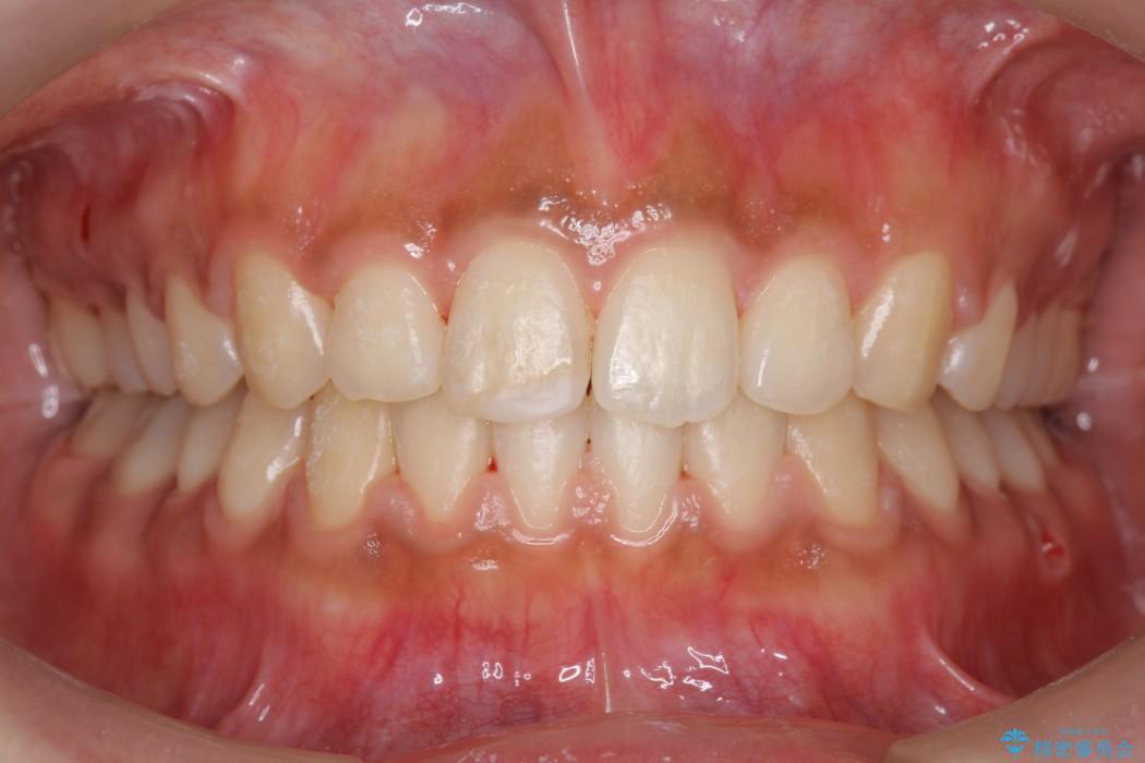 20代女性 すきっ歯の矯正歯科治療 アフター