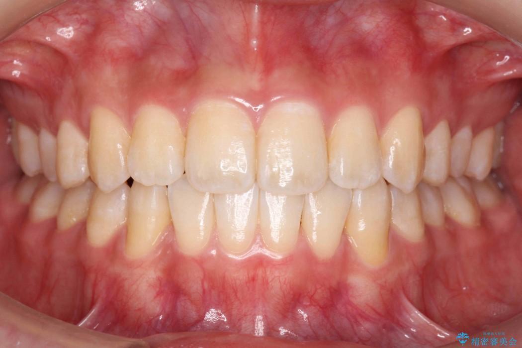 前歯の叢生のインビザライン矯正 アフター