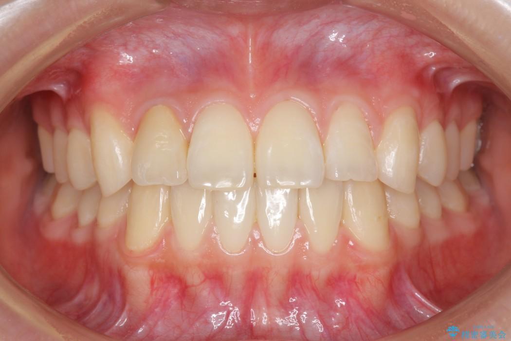 インビザラインで再矯正治療と右上前歯のセラミック治療 アフター
