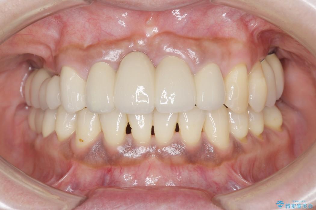 インプラントを用いた重度歯周病治療 アフター